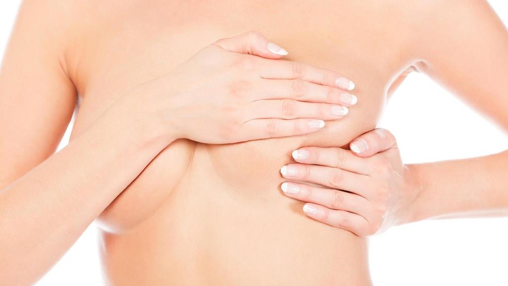 Liikunta & lymfaterapia rintasyövän hoidon jälkeen